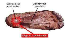 Fig. 2 : dissection cadavérique : aponévrose plantaire